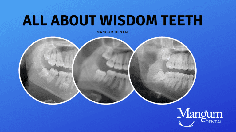 All About Wisdom Teeth
